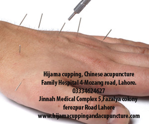 Chinese Acupuncture in Lahore | Chinese acupuncture in Pakistan